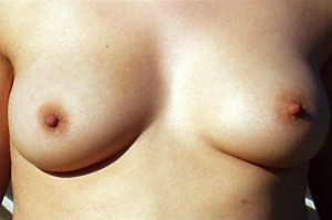 Breasts1